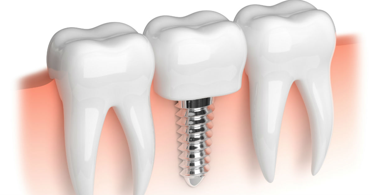 Advancements In Dental Implant Procedures