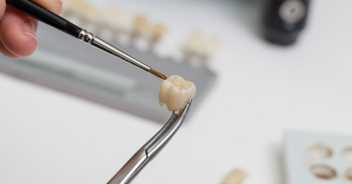 The Problems Associated With Replacing Old or Broken Crowns And How You Can Avoid Them