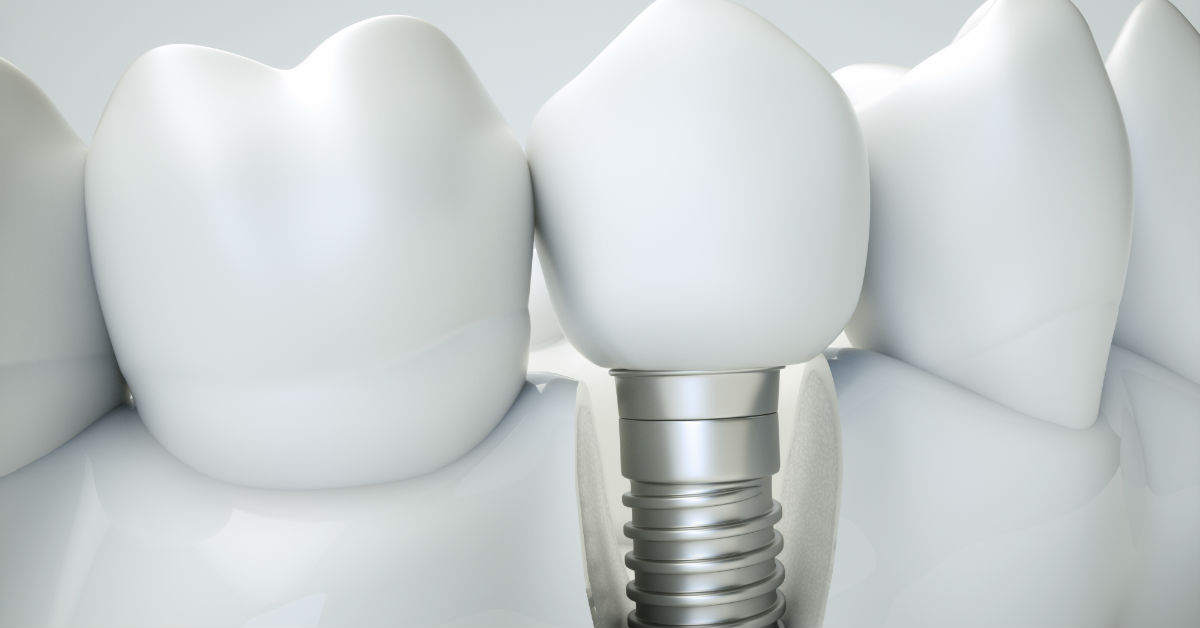 6 Ways We Prevent Your Dental Implant From Failing