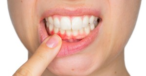How to Identify and Fix Gingivitis
