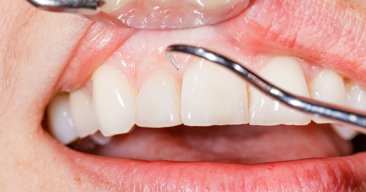 ​5 Reasons to Avoid Gingivitis Like It's the Plague
