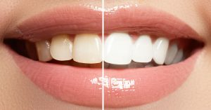 You Heard It From Your Dentist: Professional Teeth Whitening Works Better Than A Store-Bought Kit