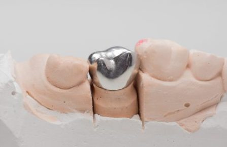 Metal-Dental-Crowns
