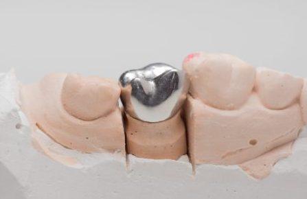Metal-Dental-Crowns