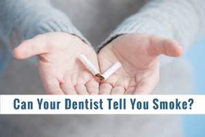 Can A Dentist Know You Smoke By Your Teeth