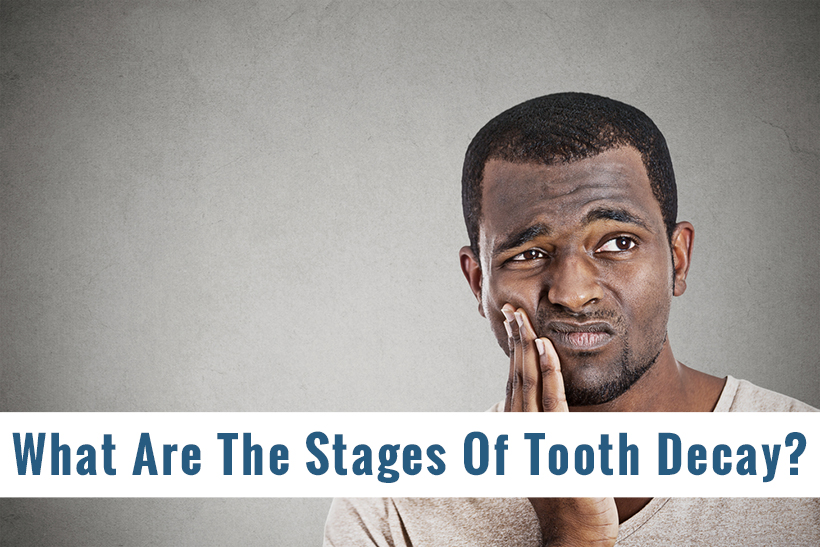 What Are The Stages Of Tooth Decay