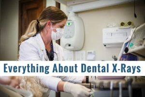 Everything About Dental X-rays (1)