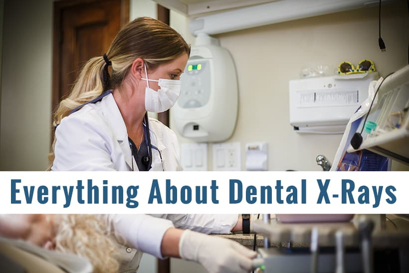 Everything About Dental X-rays