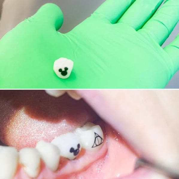 Riverside Dental Care Tooth Tattoo