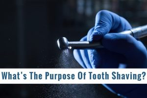 What Is The Purpose Of Tooth Shaving (1)