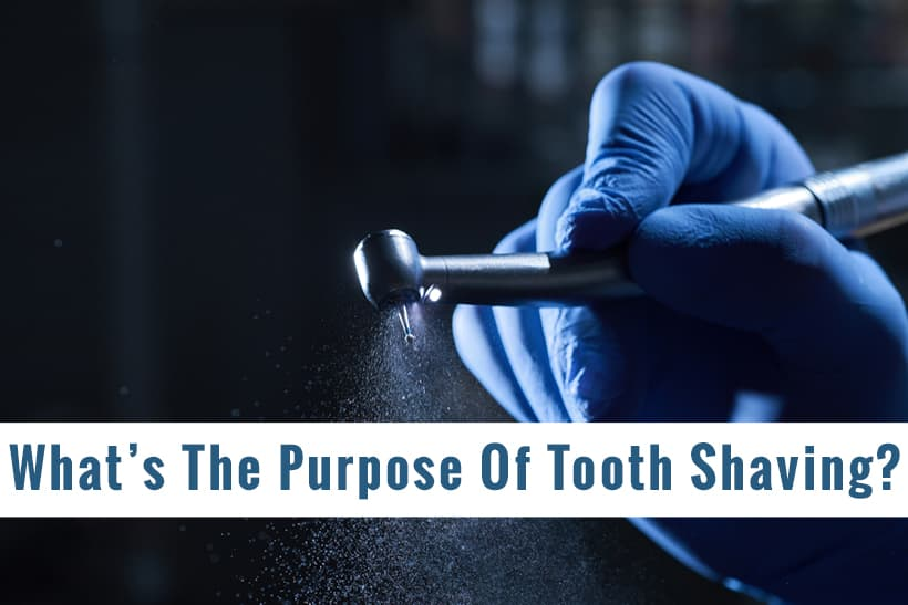 What Is The Purpose Of Tooth Shaving