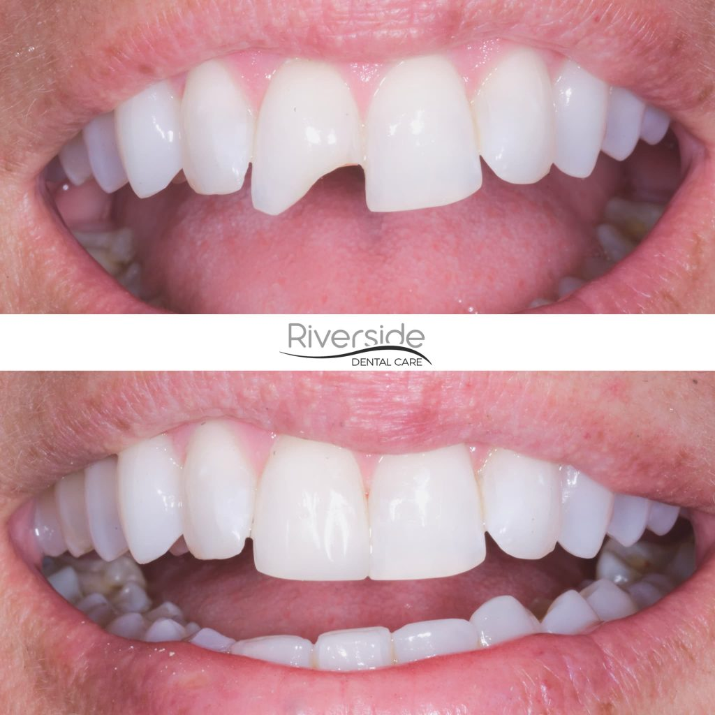 Riverside Chipped Tooth Before And After