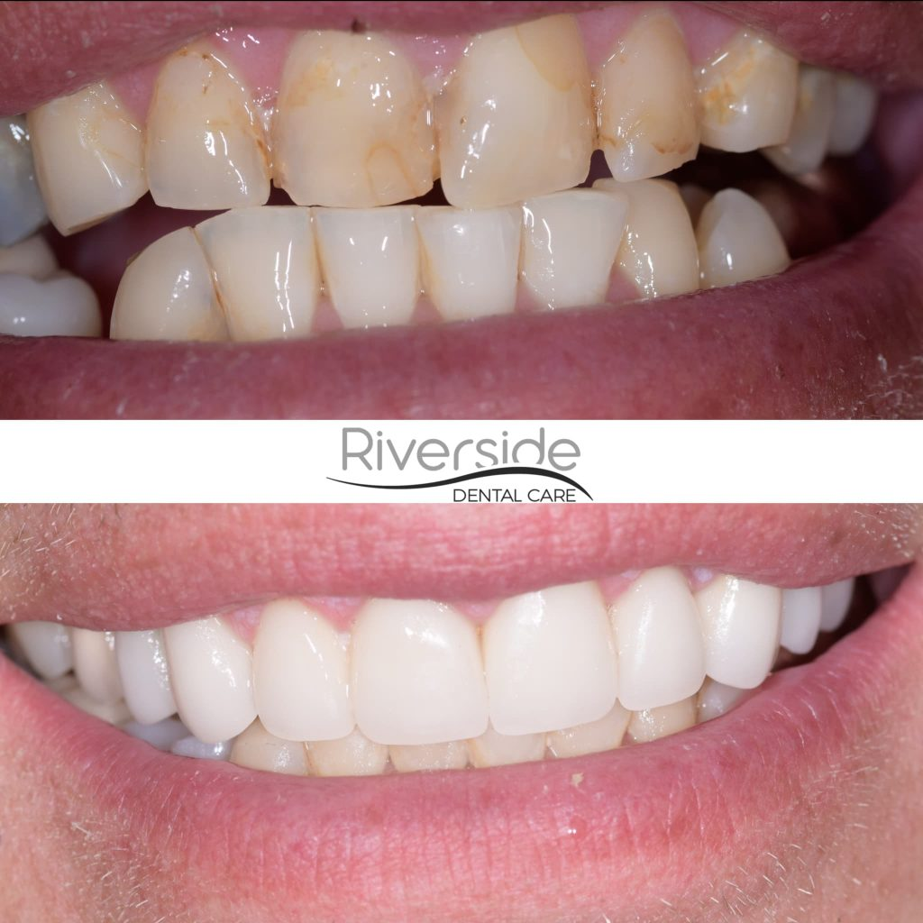 Riverside Crowns and Veneers Before and After