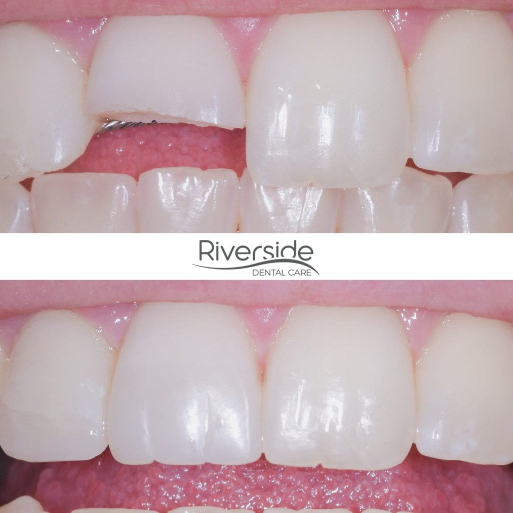 Riverside Dental Bonding Before And After