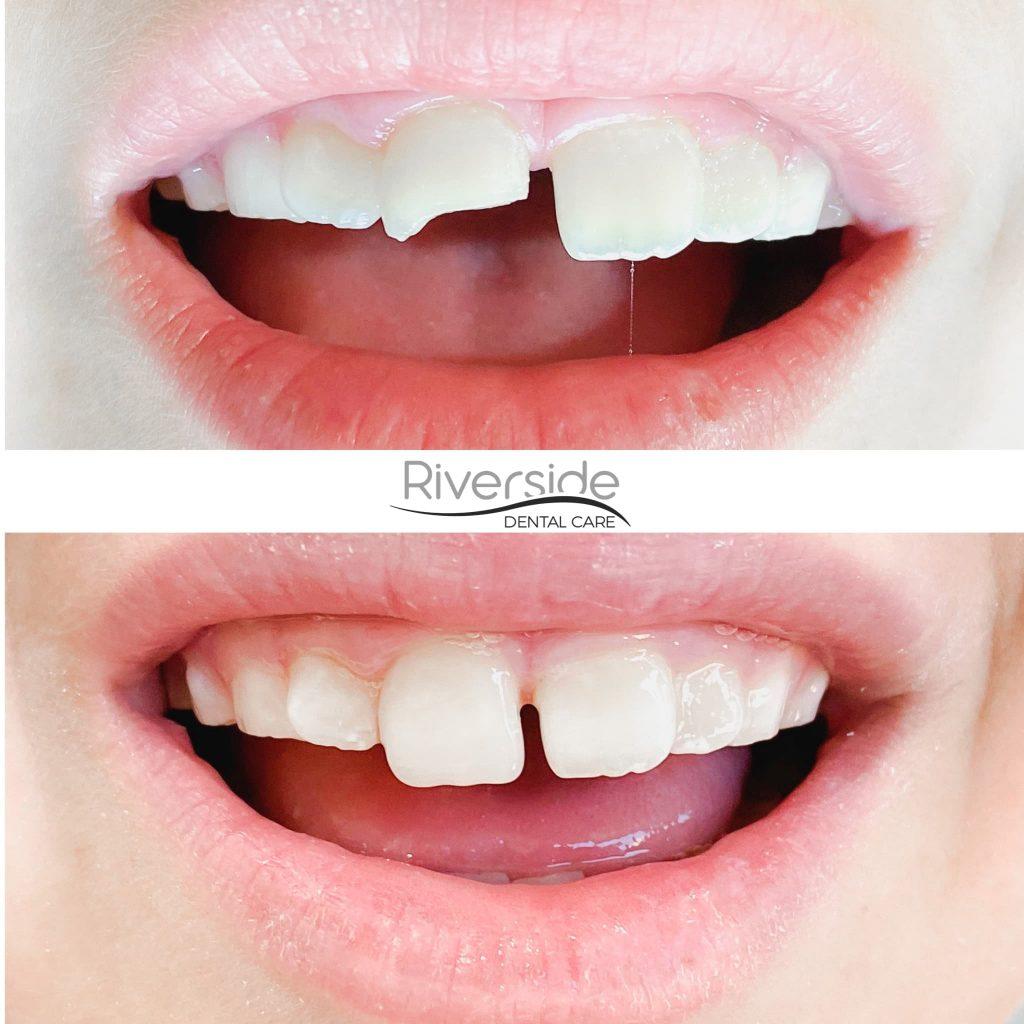 Riverside Emergency Dental Before And After