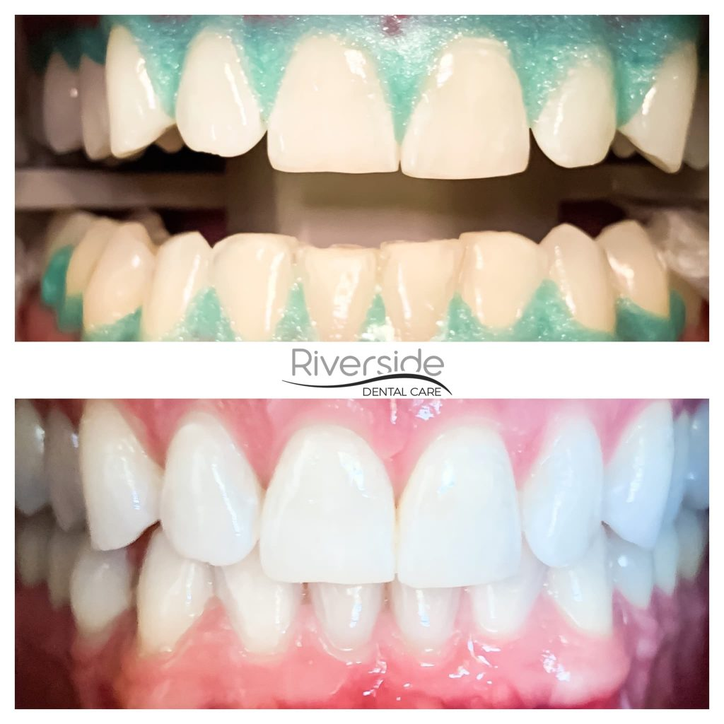 Riverside Teeth Whitening Before and After