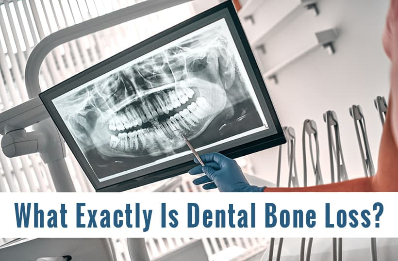 What Is Dental Bone Loss