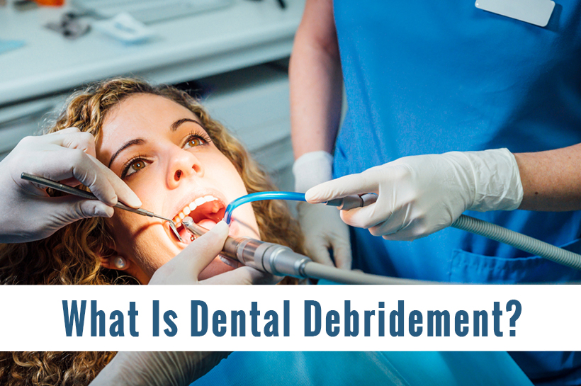 What Is Dental Debridement